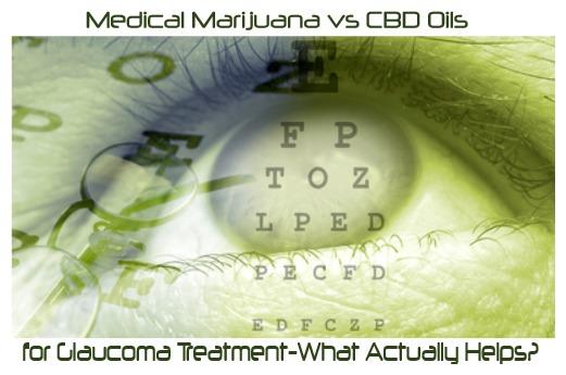 Medical Marijuana vs CBD Oils for Glaucoma Treatment