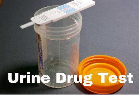 Urine Drug Test